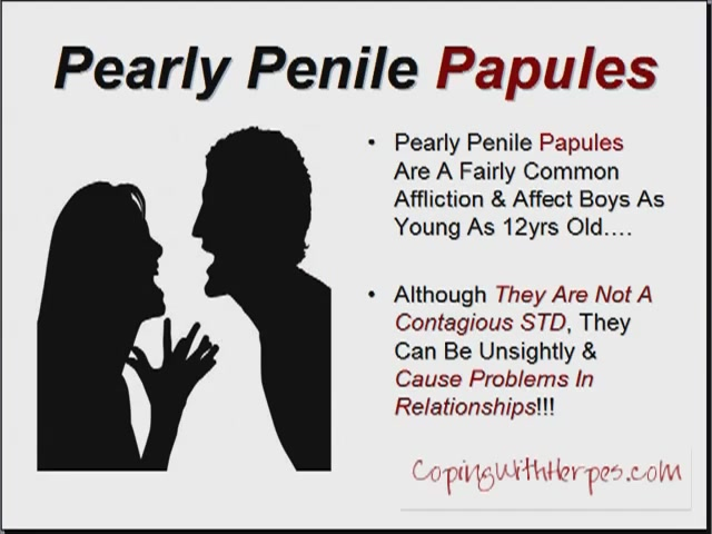 How To Get Rid Of Penile Papules Naturally