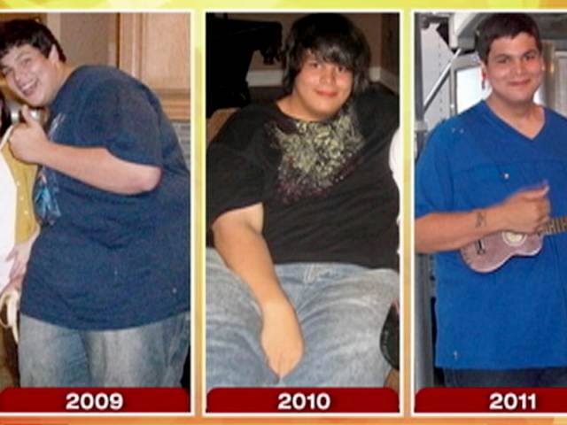 Summary Weight Loss Surgery For Teens Amp Adolescents Bariatric