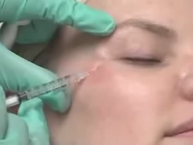 Botox Injection, Damascus Cosmetic Clinic | PopScreen