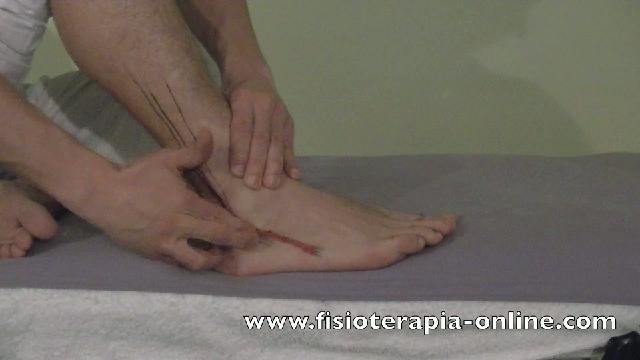Automasaje para la tendinitis de los músculos peroneos. | PopScreen